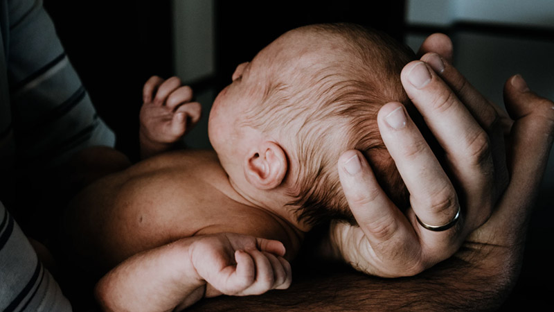 How To Manage Your Baby's Cradle Cap