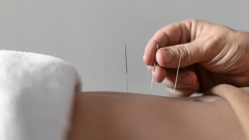 Acupuncture for Fertility: Every Couple Who Wants to Get Pregnant Should Read This!
